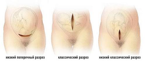 Когда назначают кесарево сечение при беременности