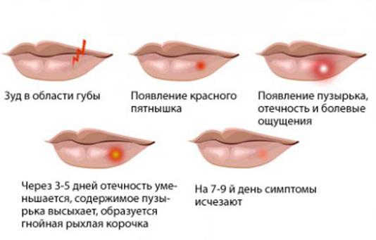 Как лечит генитальный герпес в домашних условиях