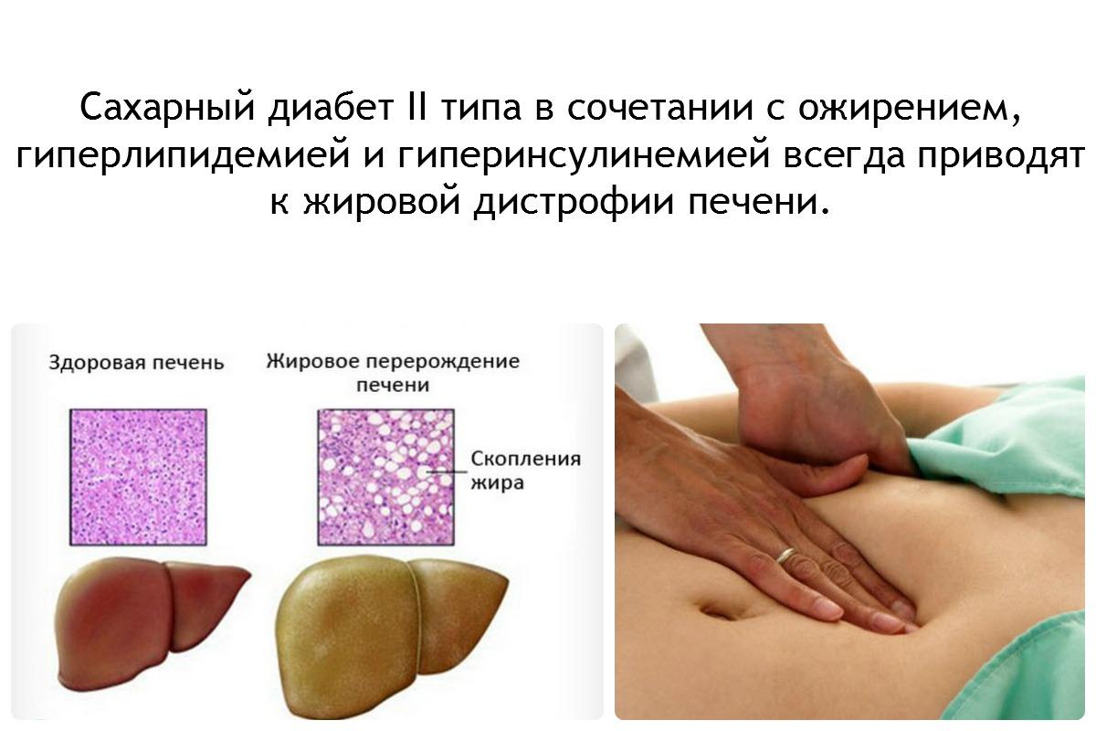 При гепатите и диабете лечение