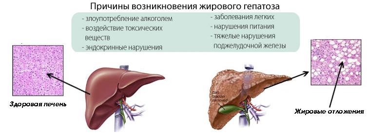 Сдать анализ на гепатит с в мурманске