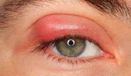 Ячмень на глазу: причины,симптомы,лечение,профилактика,советы