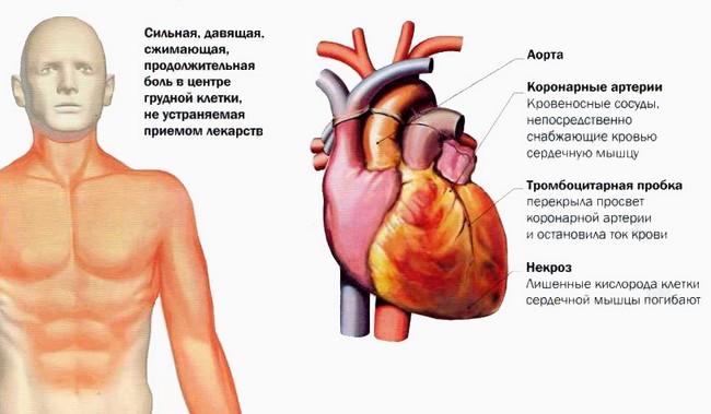 Инфаркт миокарда что это такое и последствия Инфаркт симптомы ...